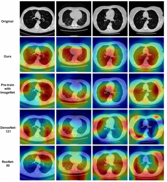 Grad-CAM (Selvaraju et al., 2017) visualizations for learned features from several baseline methods. Top line is the original image set, followed by our methods, our methods with ImageNet pre-train, DenseNet-121 and ResNet-50. It is obviously that our method can learn lung's features better. Source: www.researchgate.net.